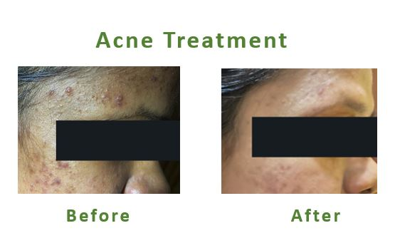 Acne-Treatment-Before-After
