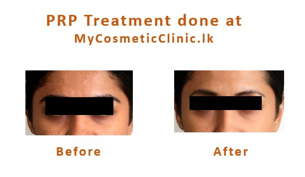 PRP-Treatment-Before-After