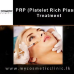 Platelet Rich Plasma (PRP) Treatment
